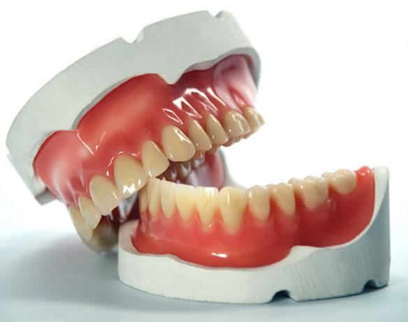 Takma Diş Nasıl Yapılır ?